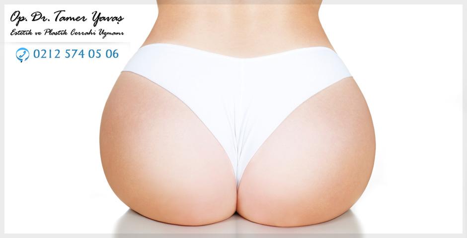 Buttock Reshap...